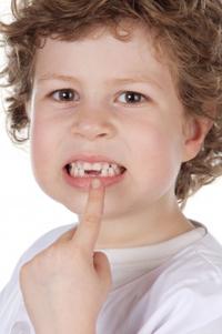 childteeth
